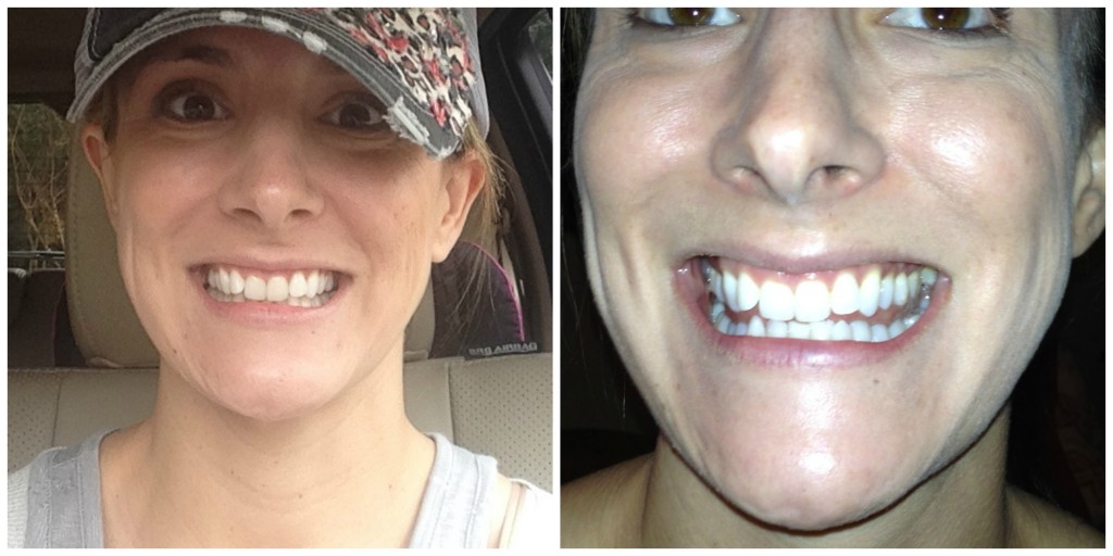 photos-teeth-whitening