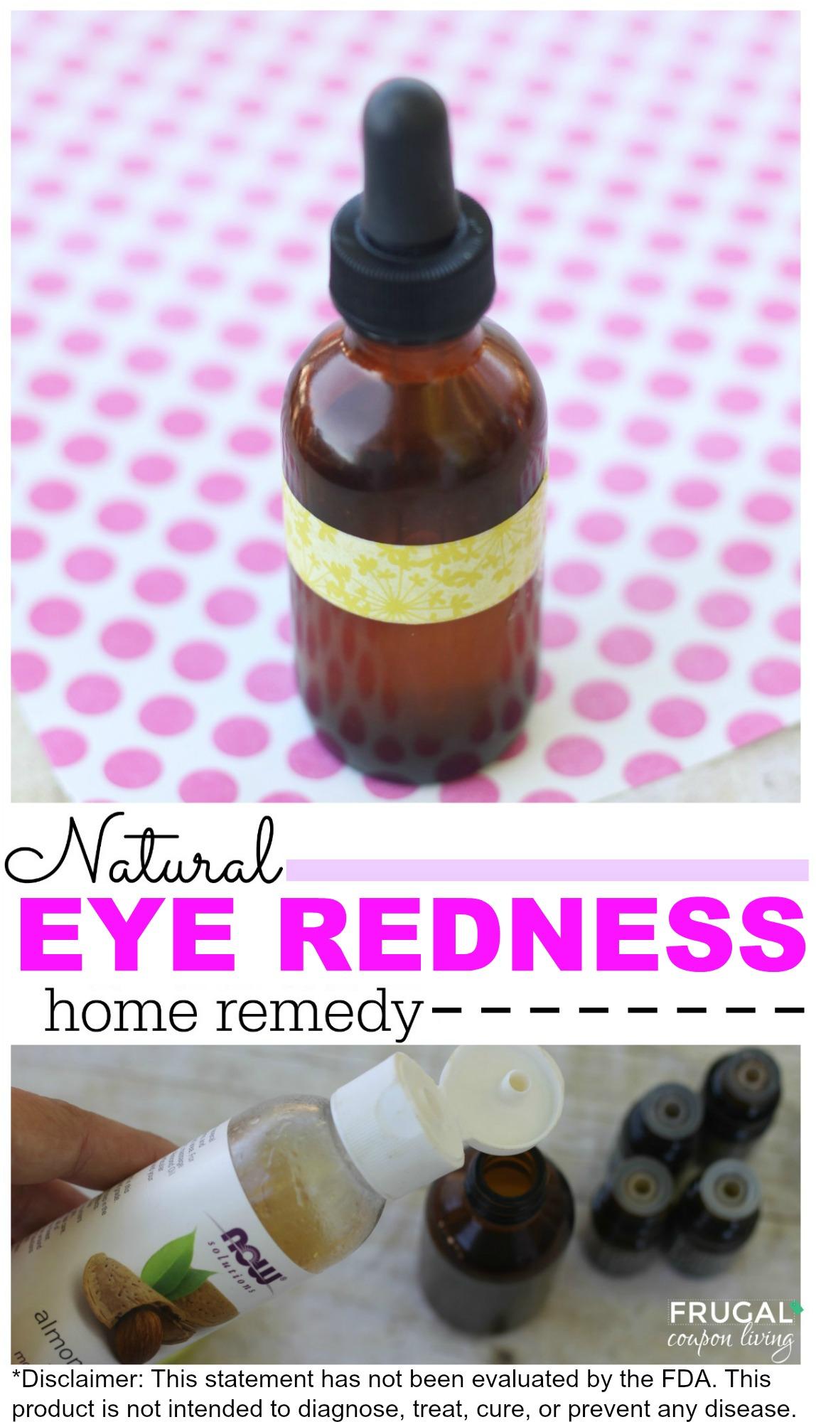 natural-eye-redness-essentail-oils